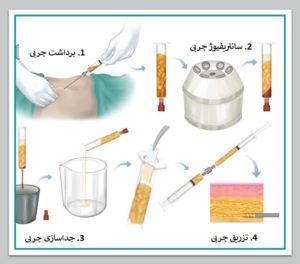 بهترین جراح لیپوست در تهران