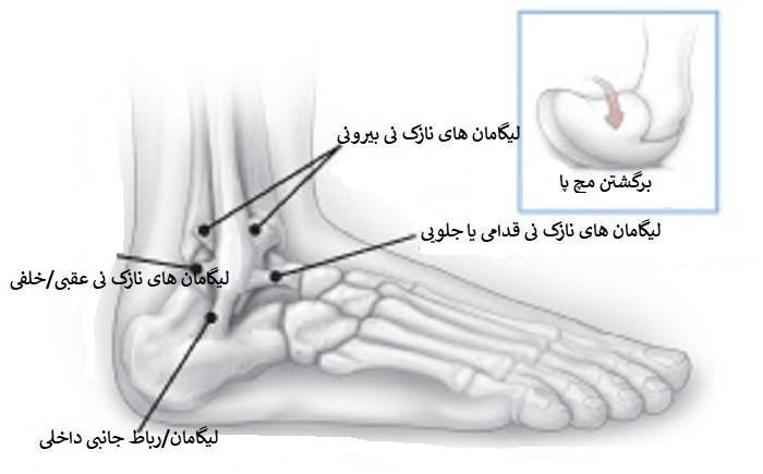 طول درمان پیچ خوردگی مچ پا و فیزیوتراپی مچ پا